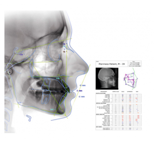 Planmeca Romexis cefalometrická analýza
